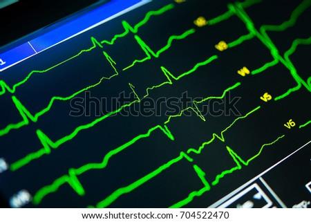 cardiogram close-up on a cardiograph monitor