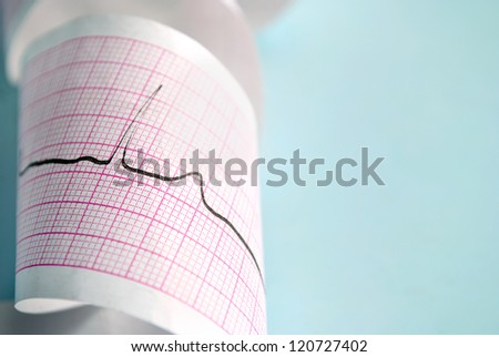 cardiogram on a blue background