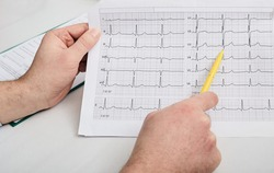 Cardiogram test, close-up of ECG report. Doctor analyzes cardiogram results of a patient's heart for diagnosis and treatment of heart disease