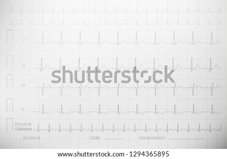 Cardiogram with lined paper as a background for a medical publication, annual report, etc.echocardiogram ultrasound cardiogram ultrasonic cardiogram