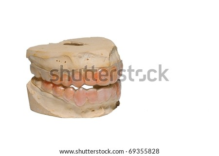 Casting of teeth isolated on white