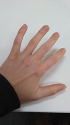 Caucasian male hand with dry skin and office signs of RSI - Repetitive strain injury