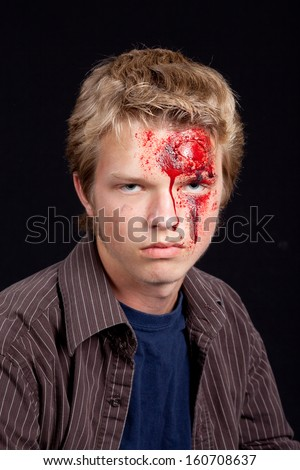Caucasian teenage boy with blonde hair with serious head injury