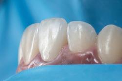 Cementation or bonding procedure of dental ceramic veneers under rubber dam isolation.