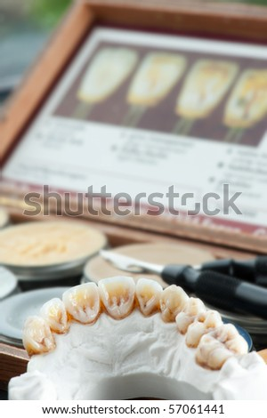 Ceramic dental crowns on an artificial jaw