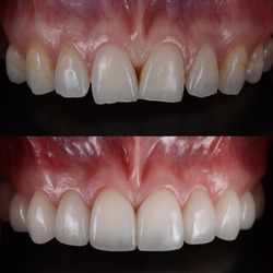 Ceramic dental veneers treat crowding teeth, before and after.