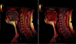Cervical Spine MRI/  Many Other Radiological Images (CT, MRI, PET CT, X-ray) in my portfolio