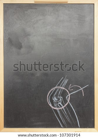 Chalk drawing human joint sketched on chalkboard