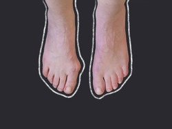 Chalk outline of hallux valgus, bunion in woman foot on black background. Overhead shot with copy space.