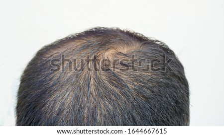 Characteristic symptoms of thinning hair,Glabrous,bald head
