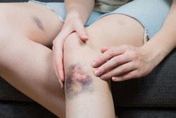 Checking bruise injury on young woman knee. Close up image of female person sitting on sofa and examining wounded leg with hematoma