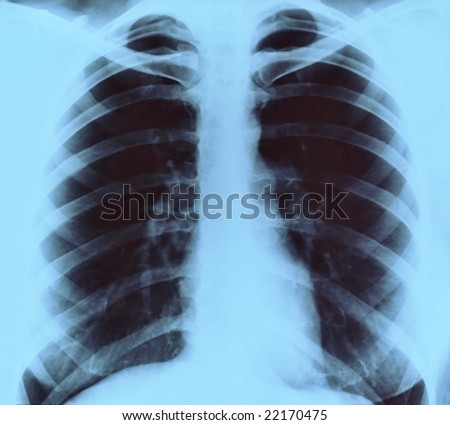Chest frontal x-ray image for medical diagnosis - stock photo