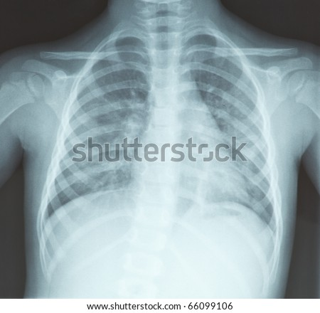 chest x-ray, lungs, of young girl - diagnosis