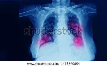 Chest x-ray of a patient showing primary lung cancer in both right and left lobe of lung. Dark background with red highlight focus on the tumor.
