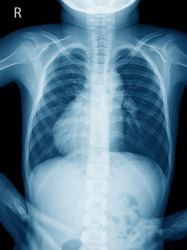 Chest X ray of a 11 year old boy with dextrocardia situs inversus showing the cardiac apex pointing towards right, Other congenital malformations of heart - Dextrocardia