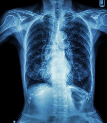 Chest X-ray of old patient ( calcification at rib , trachea , bronchus )