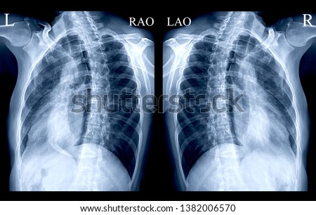 Chest X-ray or X-Ray Image Of Human both oblique view or both side for detect fracture Rib from patient case trauma . #1382006570