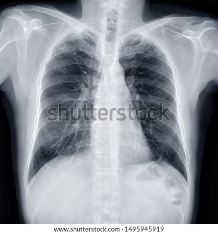 Chest X-ray or X-Ray Image Of Human Chest for diagnosis tuberculosis . check up concept. #1495945919