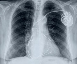 chest x-ray with cardiac pacemaker