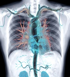 Chest X-ray with 3D rendering image CTA whole aorta inside the chest.