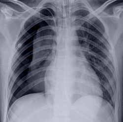 chest x -ray with pneumothorax