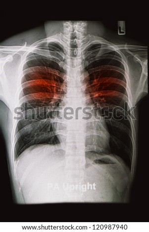 chest X-rays image show lungs and pulmonary disorders