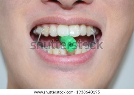 Chew the aligner chewies (Dental braces) Stock photo ©