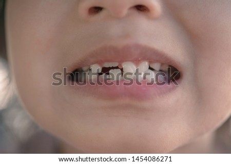 Child girls are opening their mouths. In the mouth with broken teeth #1454086271