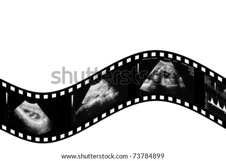 child in the picture ultrasound