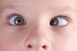 Child's face with squint and freckles on nose. Strabismus in children causes and treatment concept