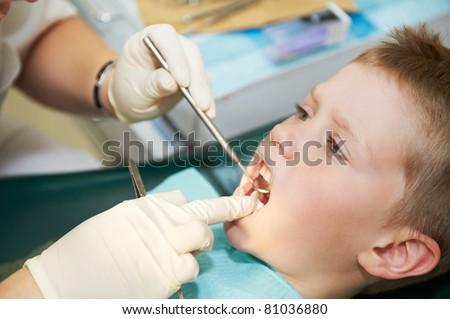 child teeth treatment with dental examination equipment