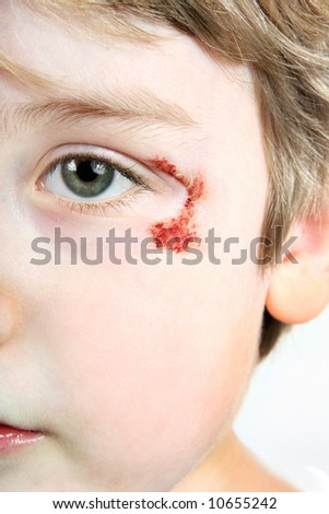 Child with a scrape near his eye