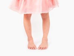 Child 5-6 year old with symptom In-toeing disease,twisted legs,Bow legs. Defect at foots and legs of kid. Metatarsal adductus, Femoral anteversion