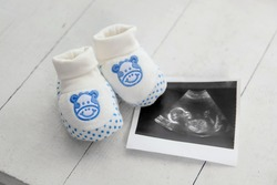 children's shoes next to a photo of ultrasound. The concept of pregnancy and new life, waiting for the newborn.