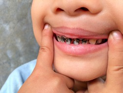 children with tooth decay close up. Teeth health care