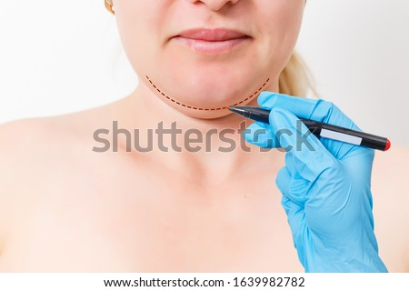 Chin reduction augmentation double chin removal plastic surgery cosmetic operation concept Woman eyes closed waiting doctor surgeon hands to draw the cut line the double chin isolated white background