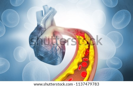 Cholesterol plaque in artery with Human heart anatomy. 3d illustration