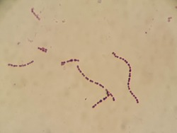 chracteristic Gram positive cocci in chains of Streptococcus  spp. under 1000X microscope.
