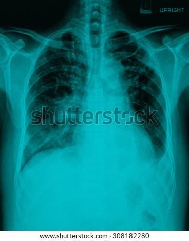 Chronic bronchitis, emphysema old pulmonary tuberculosis