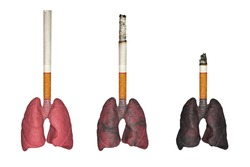 Cigarette smoker's lungs, effects of cigarette smoking.