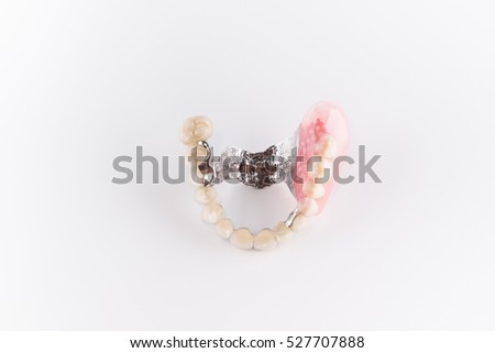Clasp prosthesis with and attachments fixing ceramic crowns #527707888