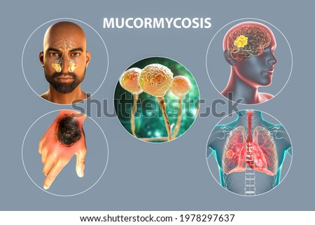 Clinical forms of mucormycosis, a disease caused by Mucor fungi, also known as black fungus, or bread mold, 3D illustration. Fungal infections in immunocompromised people, Covid-19 complication Сток-фото ©