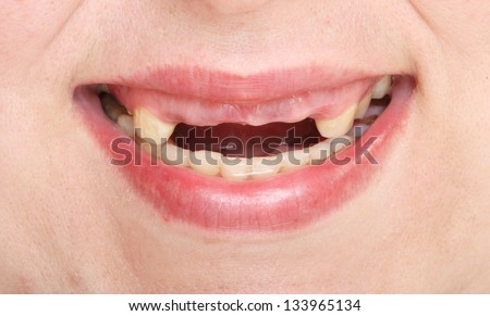 Close Up A Mouth Showing A Rotten Teeth Stock Photo