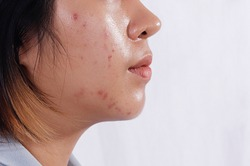 Close up Acne skin caused by Hormone,Oily face in woman face. Right side