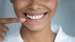 Close up african woman point finger at perfect straight hollywood white toothy smile. After whitening dental treatment procedure showing result, health stomatology dentistry service, oralcare concept