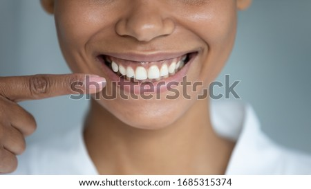 Close up african woman point finger at perfect straight hollywood white toothy smile. After whitening dental treatment procedure showing result, health stomatology dentistry service, oralcare concept Foto d'archivio ©