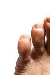 Close up big toe of Toenail half off. Feet tear nail off