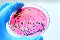 Close-up Black colonies of Salmonella bacteria that produce hydrogen sulfide growth on selevtive media XLD agar with white background  while scientist hand holding