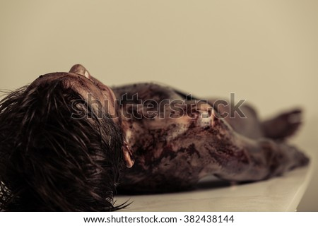 Close up Burnt Body of a Dead Young Boy Lying on the Table in Morgue, Emphasizing Head and Shoulder. Foto stock ©