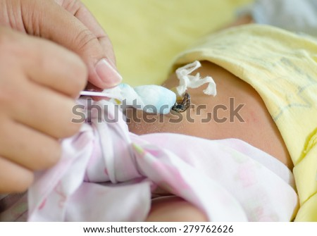 Close up cleaning umbilical cord of 4 days after newborn with alcohol